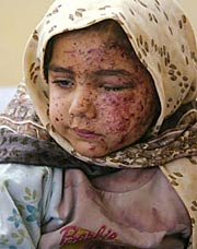 Injured Iraqi Child